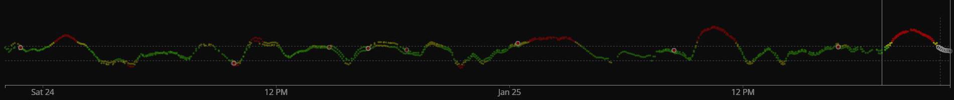 xDrip comparison - 48 hours